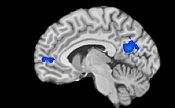 Zonele colorate în albastru arată părţile cu activitate scăzută în cazul celor care meditează
