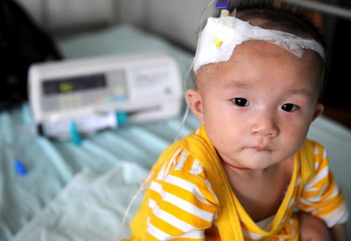 Un copil care suferă de pietre la rinichi după ce a băut lapte praf contaminat, primeşte tratament intravenos la Spitalul de Copii din Chengdu la 22 septembrie 2008, în Chengdu, provincia Sichuan, China.