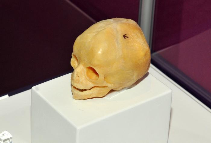 Muzeul Antipa, expoziţia The Human Body. În imagine, craniu de copil.