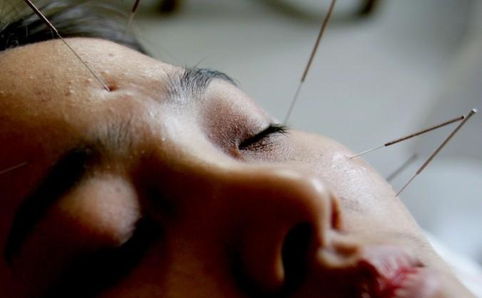 Acupunctură