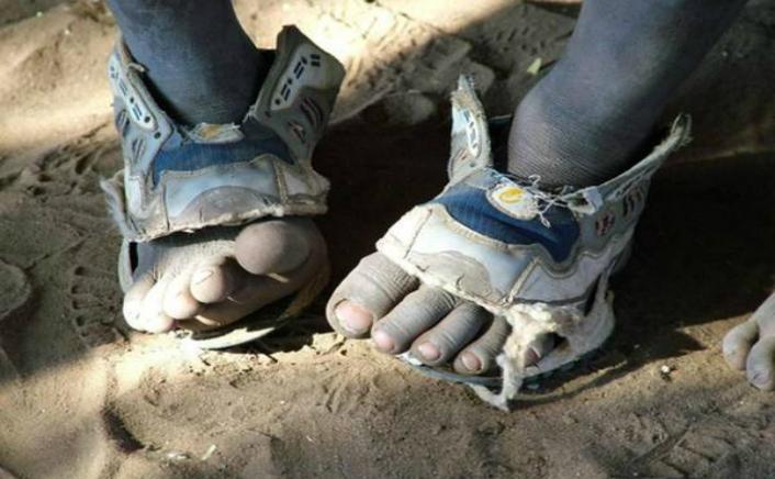 Statisticile arată că peste 300 de milioane de copii suferă de o serie de boli datorită faptului că nu poartă pantofi sau merg desculţi.