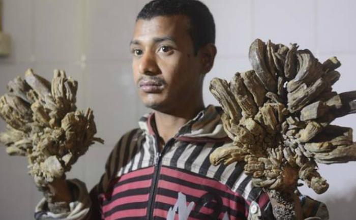 """Abul Bajandar suferă de o boală rară numită """"boala omului-copac"""""""