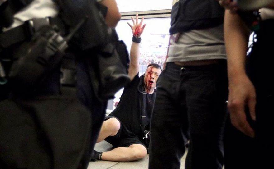 Protestatar însângerat după ciocnirile cu poliţia pe aeroportul din Kong Kong
